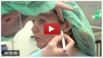 Видео процедур подтяжка нитями